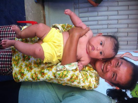 Child Rescue- a cute Cambodian baby!
