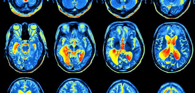 brain-scan-ADHD.jpg