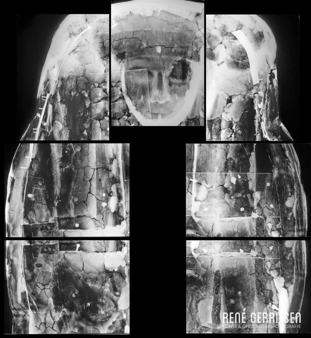 Röntgenopname