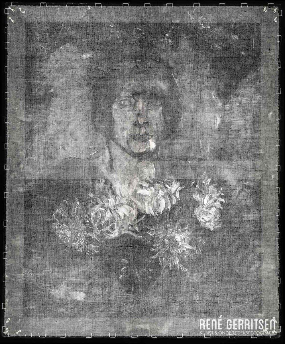 3 - Röntgen (180º gedraaid)