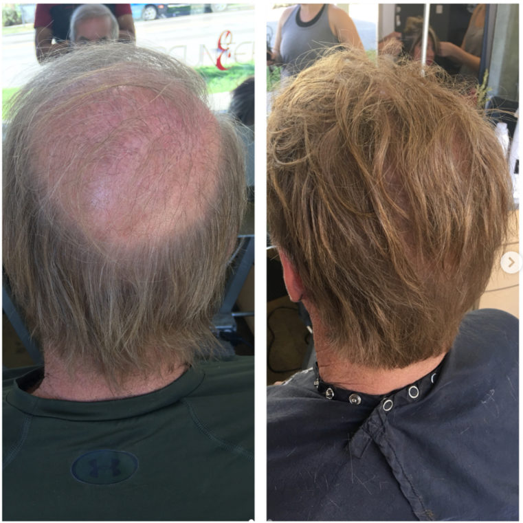 Defy the Receding Hairline and Get Hair Extensions — Ergun ...
