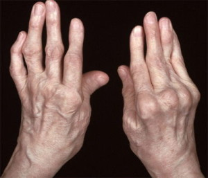 Rheumatoid hands