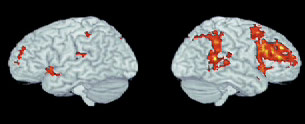 brainmusic.jpg
