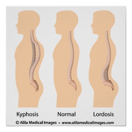 Image from: http://www.zazzle.ca/lumbar_lordosis_and_kyphosis_medical_drawing-228520116551854740