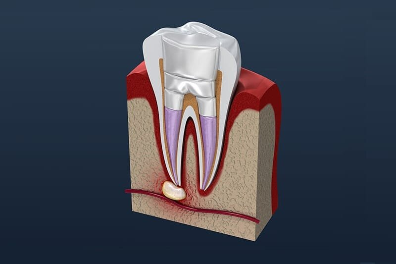 Understanding Root Canal Therapy