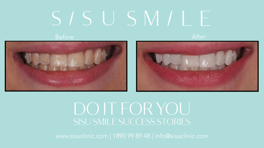 laser professional teeth whitening before after photo dublin cork sisusmile