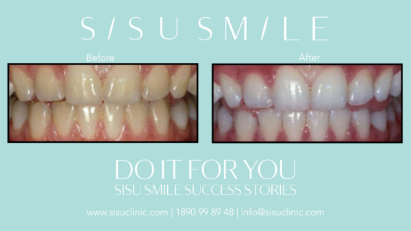 laser teeth whitening before after photo dublin cork sisusmile