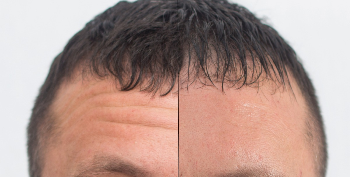Botox for men in Dublin, Cork, Killarney - Mantox, Botox