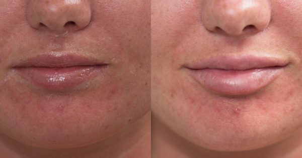 lip fillers limerick city centre before after photo natural look