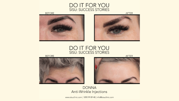 botox in limerick cheapest and best makeover results before after photos pics