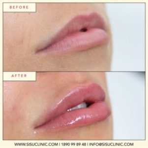 lip fillers that don't hurt - painless ireland