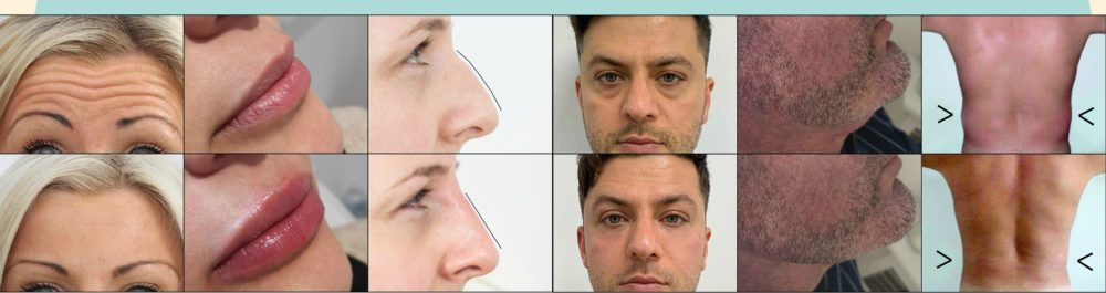 limerick dermal fillers - cheapest and best?