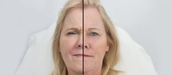 cheap Botox Limerick best clinic doctor results before after