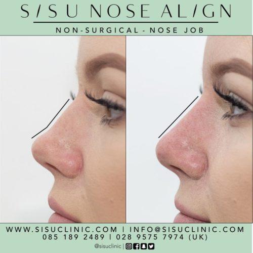 nonsurgical nose job rhinoplasty belfast dublin cork killarney instant results