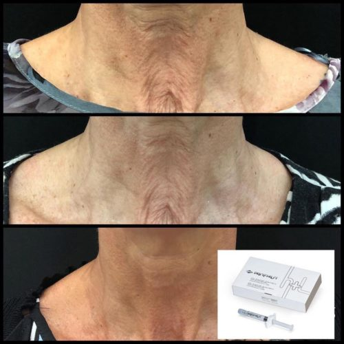 profhilo neck lift injections belfast ulster doctor clinic best cheapest