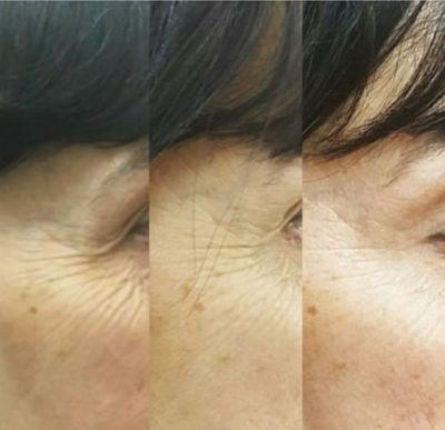 what does profhilo do for skin? belfast eyes crows feet wrinkles before after photos pictures makeover