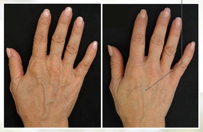 profhilo belfast injections hands before after photo uk