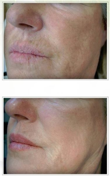 profhilo injections belfast lips mouth wrinkles nasolabial folds smile lines before after photos pictures makeover