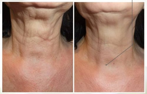 what does profhilo do for skin? profhilo neck lift belfast before after photos pictures makeover