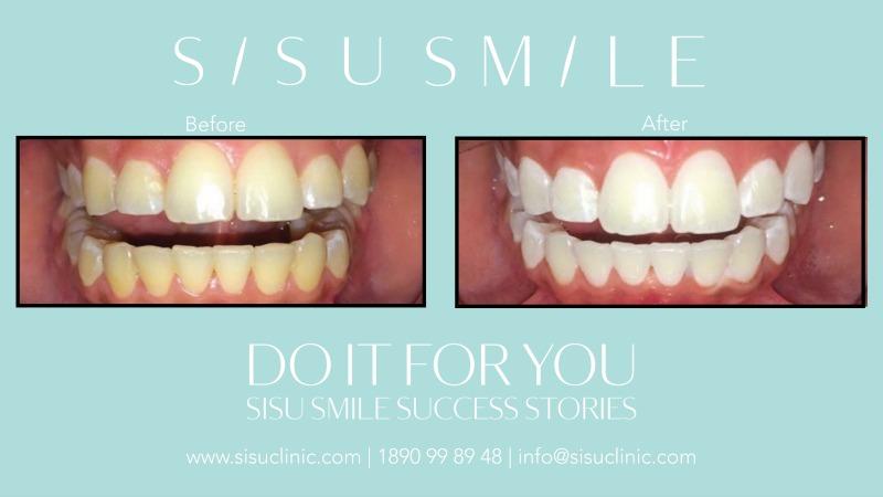 professional laser teeth whitening killarney kerry tralee clinic sisu