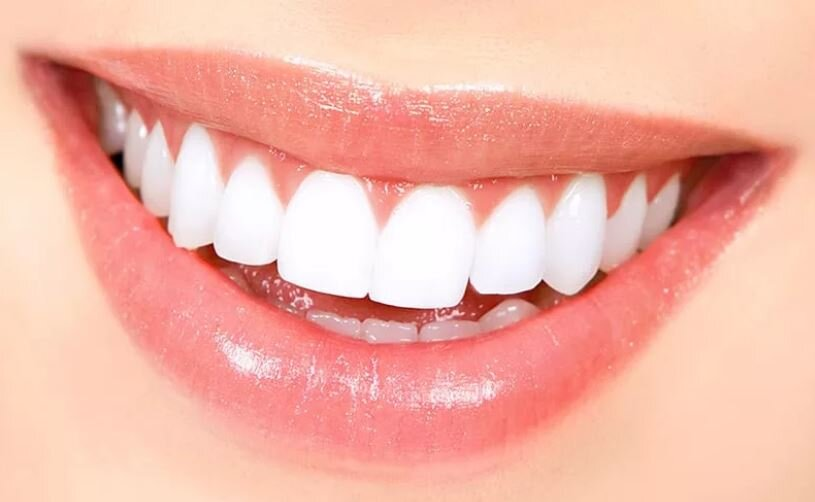 How Exactly Does Teeth Whitening Work? — The Lodge Dental Surgery