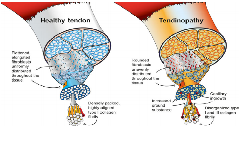 A diagram showing a healthy tendon and a tendon damaged by or experiencing tendinopathy.