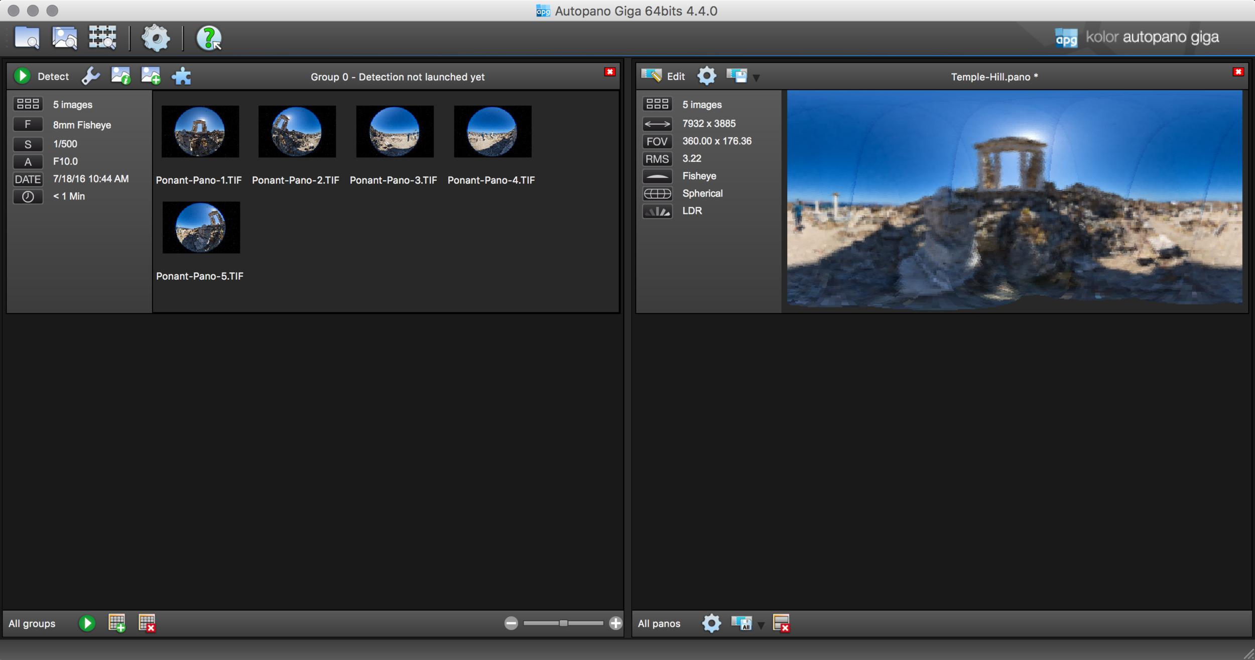 Detect and Edit screens
