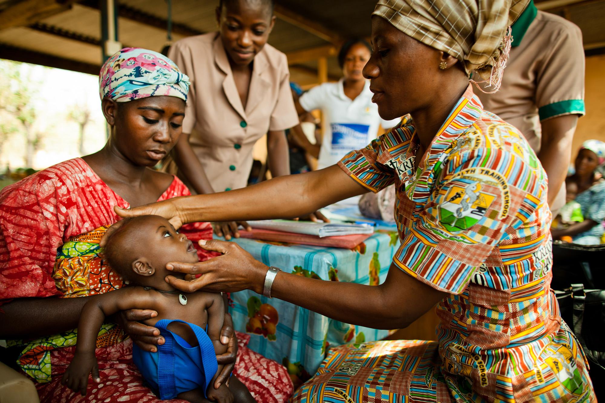 Malnutrition clinic in rural Ghana