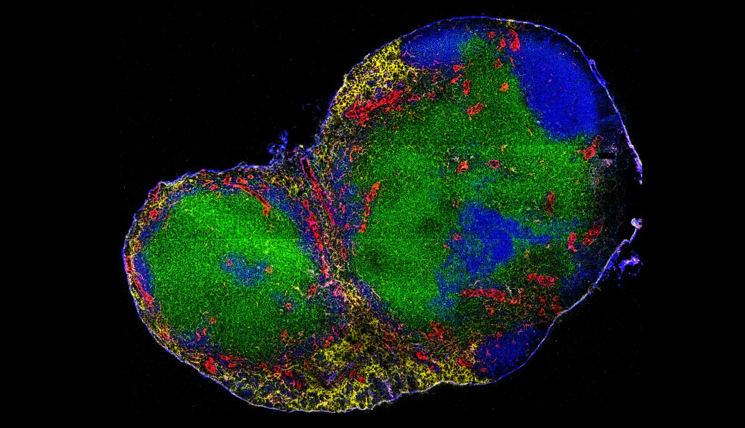 Mouse lymph node (sample provided by Benita Tse and Scott Byrne)