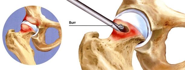 Impacto fêmoro-acetabular sendo corrigido por artroscopia do quadrilImpacto fêmoro-acetabular sendo corrigido por artroscopia do quadril