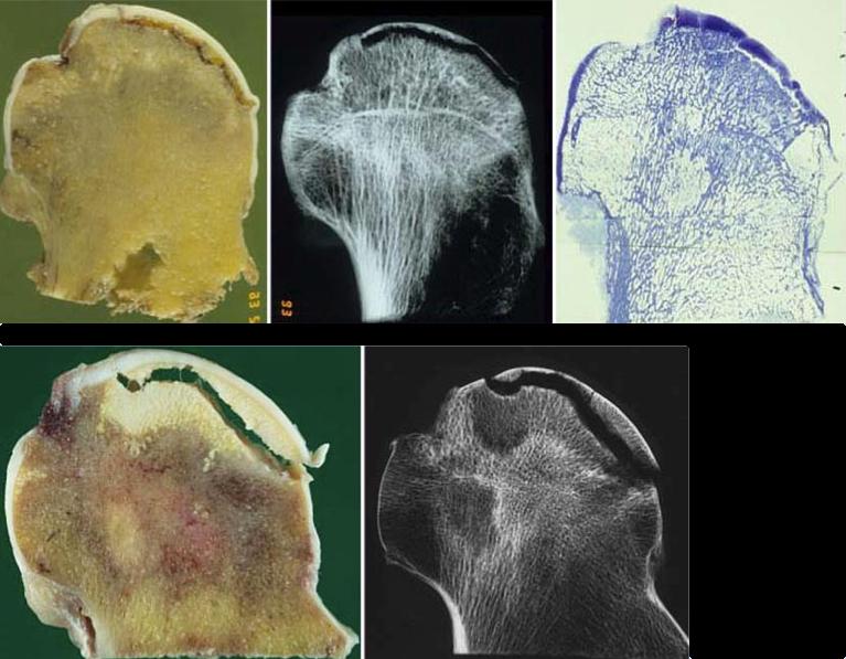 """Progressão da necrose dentro da cabeça do fêmur em cortes histológicos e radiográficos. Delling, G. 2007. """"Pathohistology of Femoral Head Necrosis.""""  Der Orthopäde  36(5): 404–13."""