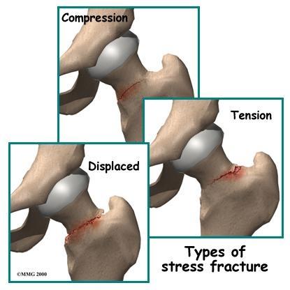 Tipos de fratura por estresse.