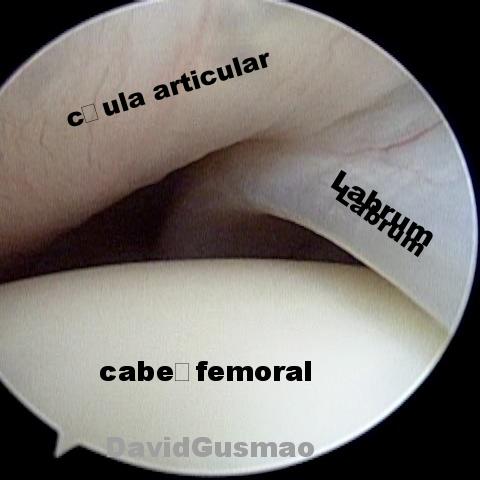 labrum quadril normal