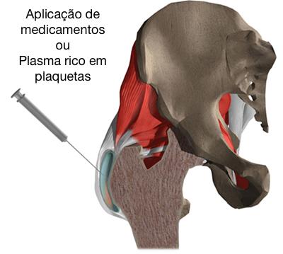 Aplicação de medicação anti-inflamatória ou de plasma rico em plaquetas.