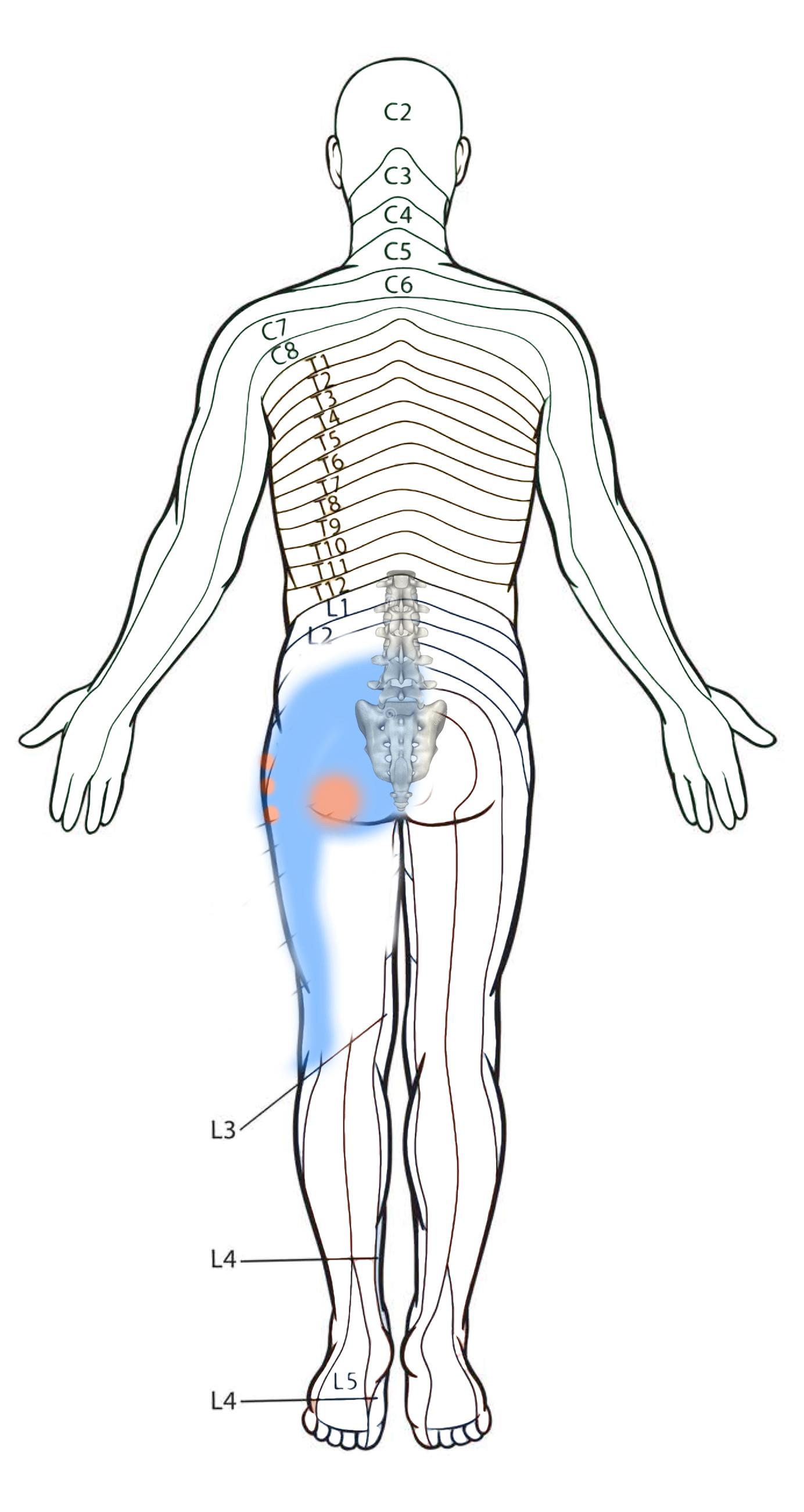 Diagrama Frontal do padrão de dor Coluna e Quadril