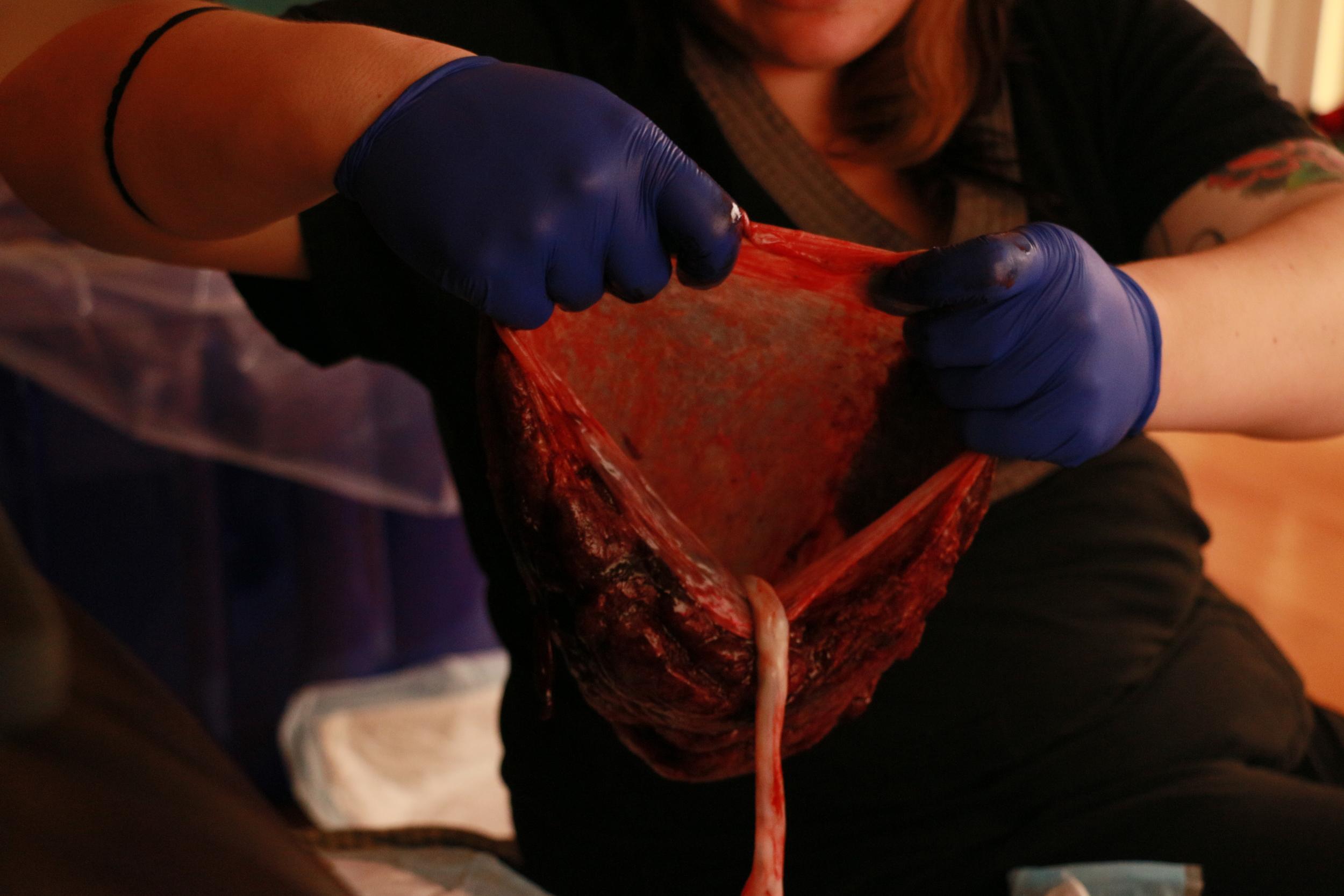 placenta at a home birth tampa