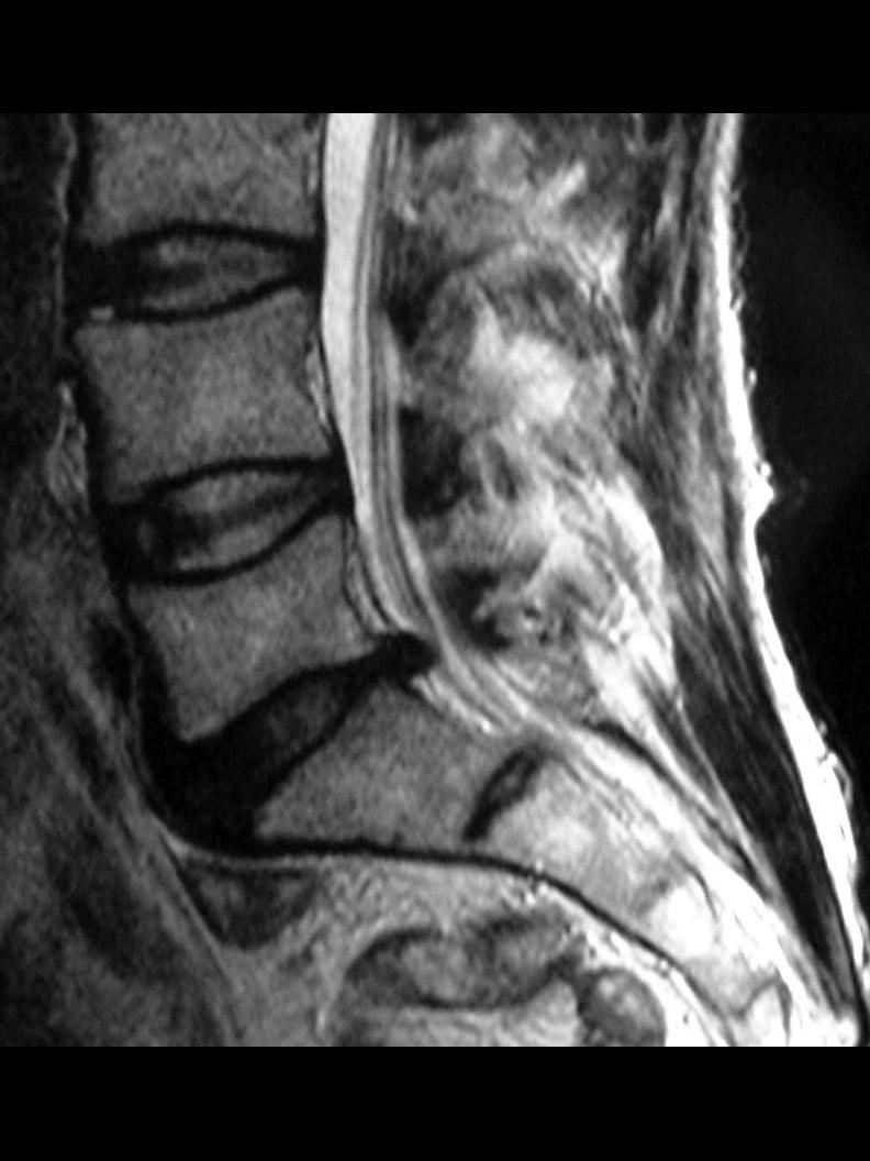 Hernia discal L5-S1