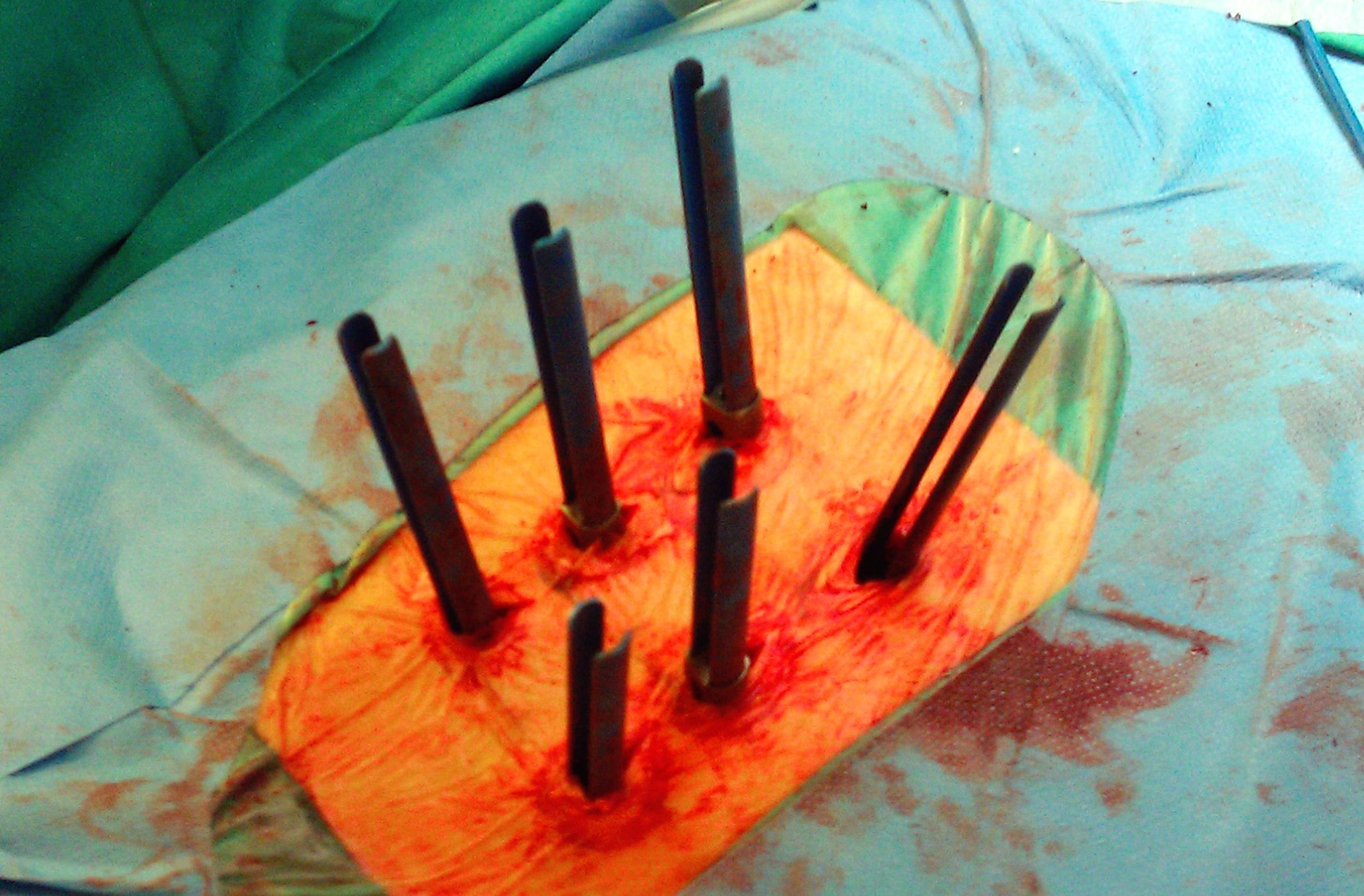 Foto7d_Cirugía_Instrumentación percutánea.JPG