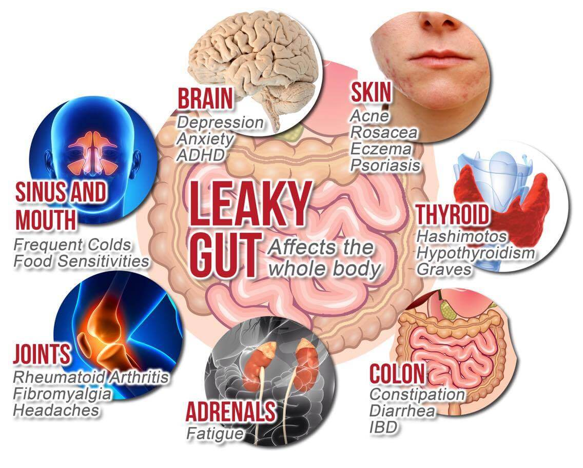 Signs of Leaky Gut? - We can help you…