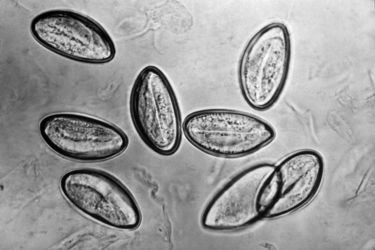1200px-Enterobius_vermicularis.png