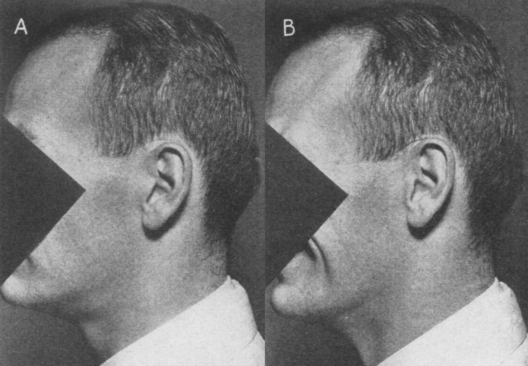 Image : The Theory of The Pathogenesis of Ordinary Human Baldness (1950)