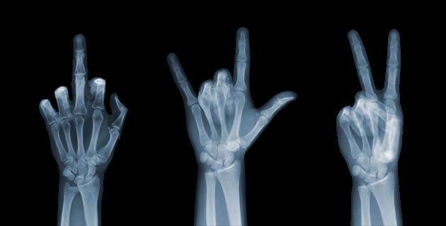 X-Ray-Photography-by-Nick-Veasey-feeldesain-00.jpg
