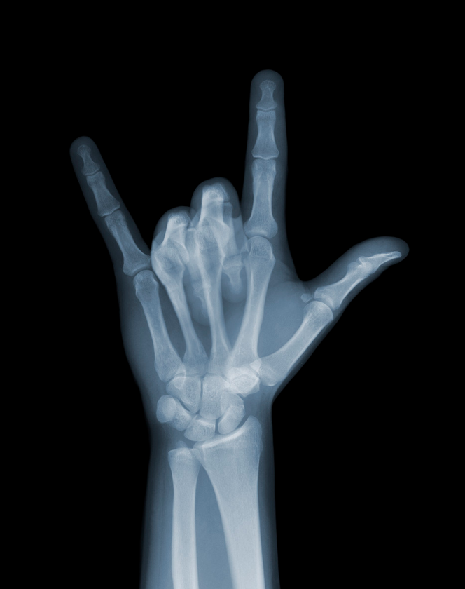 X-Ray-Photography-by-Nick-Veasey-feeldesain-03.png
