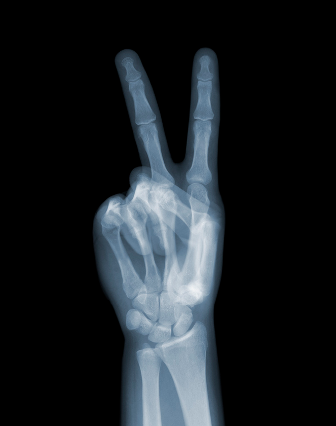 X-Ray-Photography-by-Nick-Veasey-feeldesain-02.png