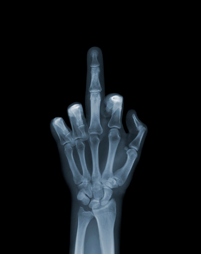 X-Ray-Photography-by-Nick-Veasey-feeldesain-01.png