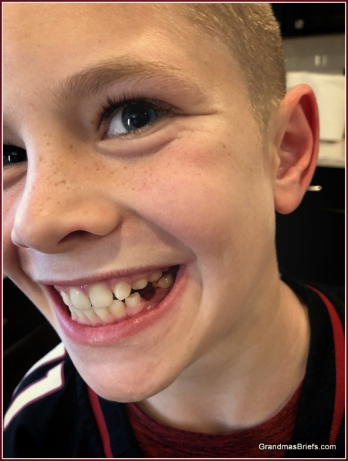 Brayden shows off his missing molar... and fantastic freckles!