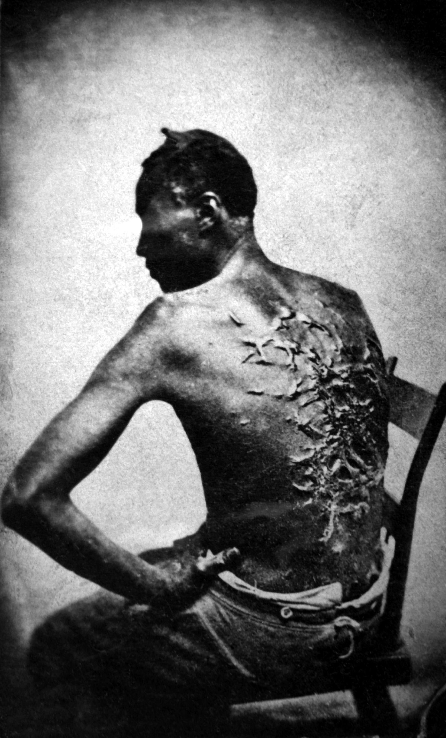 cicatrices_de_flagellation_sur_un_esclave.jpg