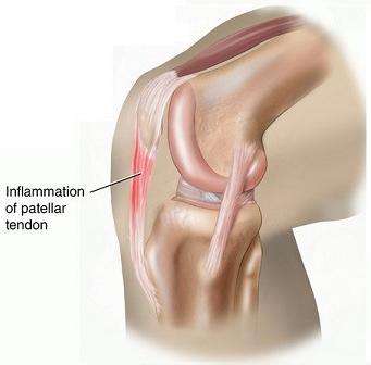 patellar tendonitis.png