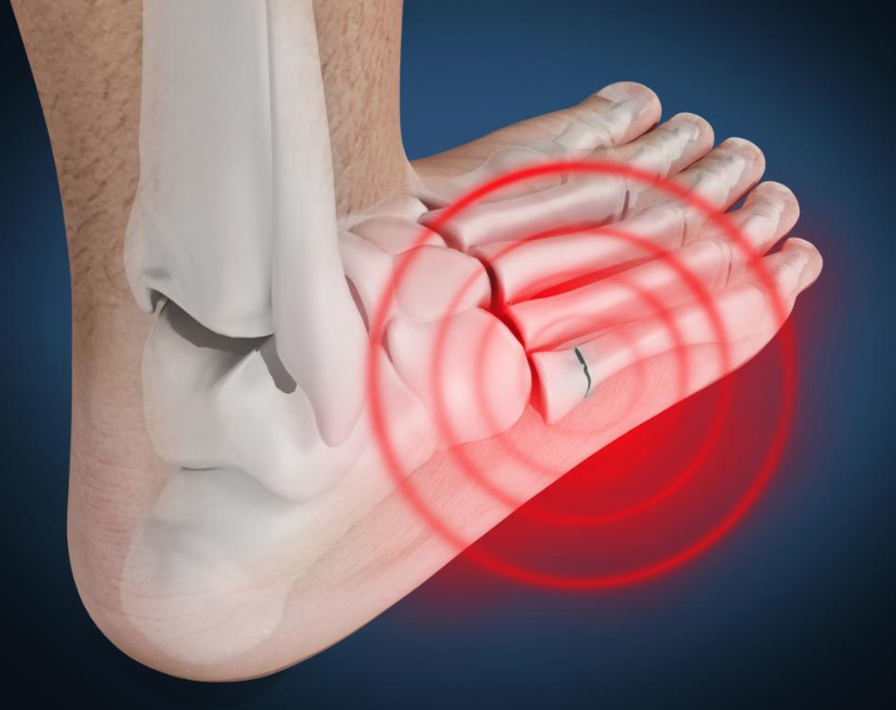 Lateral Foot Pain — MAX Remedial
