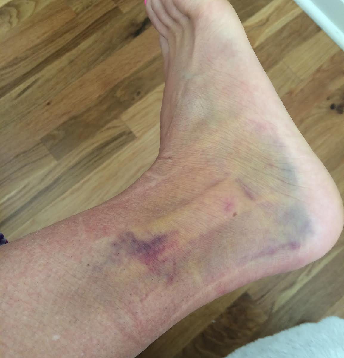 A few days after the sprain